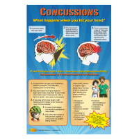 10-4887 Concussions: What Happens to Your Head Poster