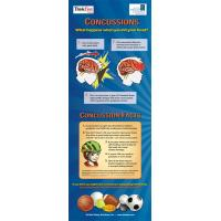 10-4893 Concussion Facts Standup Banner Display