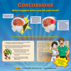 10-4890 Concussion Prevention Tabletop Display